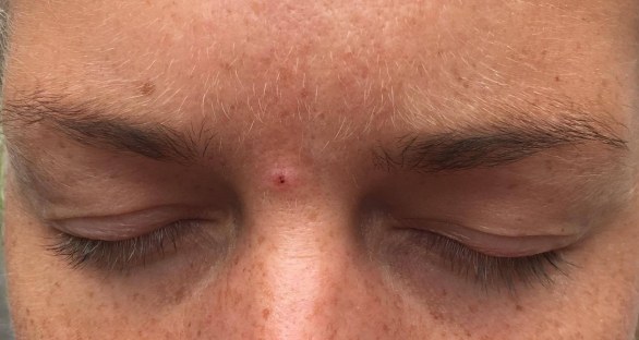 kondylom i ansiktet
