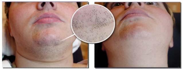 laserbehandling af hår