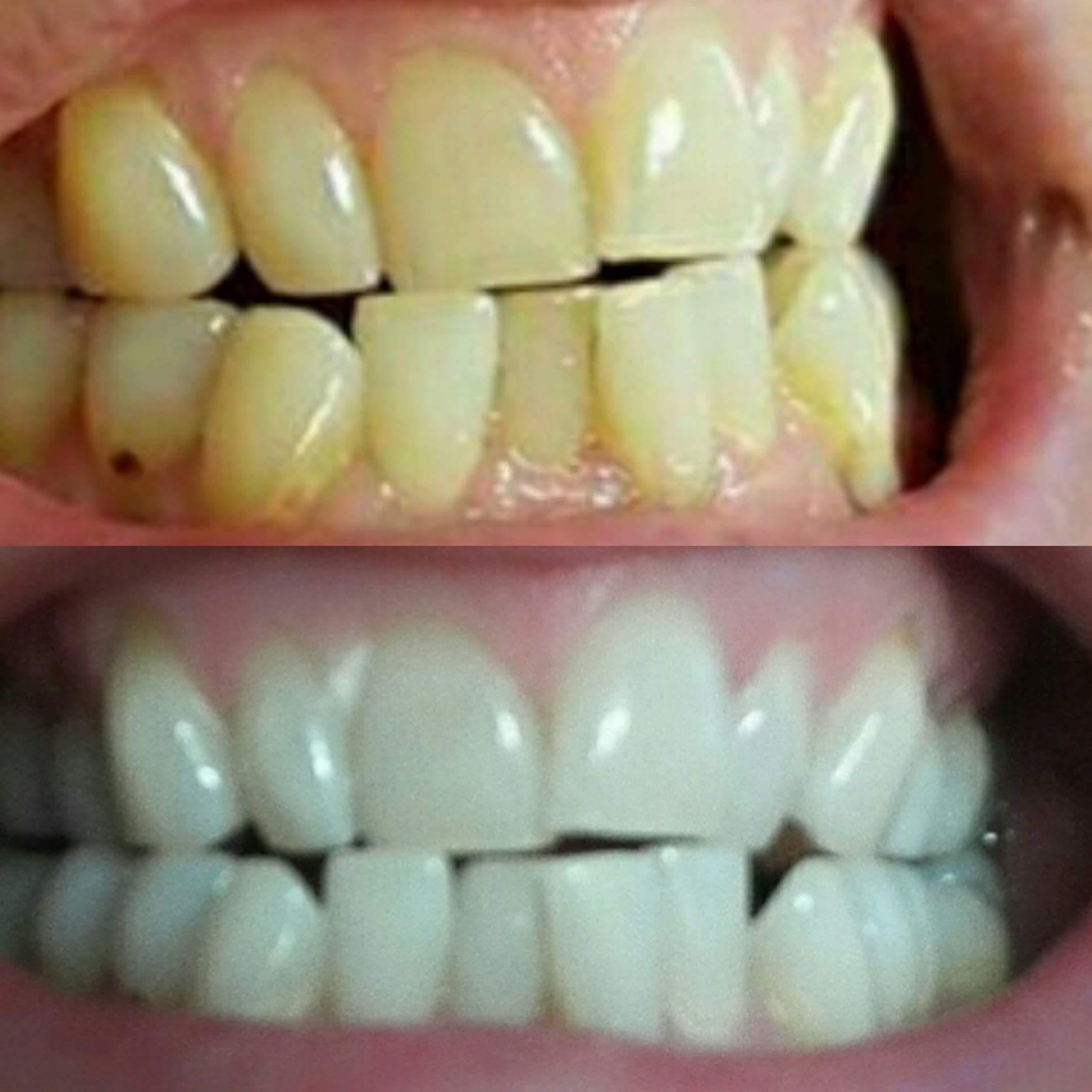 bleka tänderna hos tandläkare